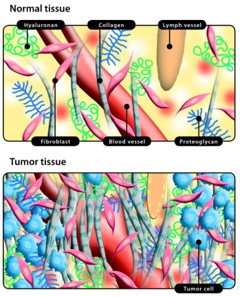 the-interstitial-space-in-normal-tissue-and-tumors-top-the-interstitium-ie-loose